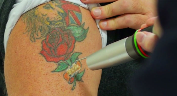 28 tattoo laser removal near me before amp after for Tattoo laser removal near me